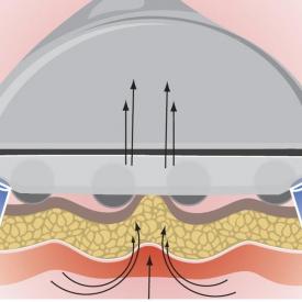 Urządzenie Masaż Endodermiczny RF Ultradźwięki #6
